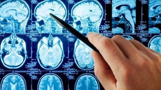 Brain Aneurysm - Causes