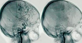 Cerebral angiography: what is it and what disorders can it detect?