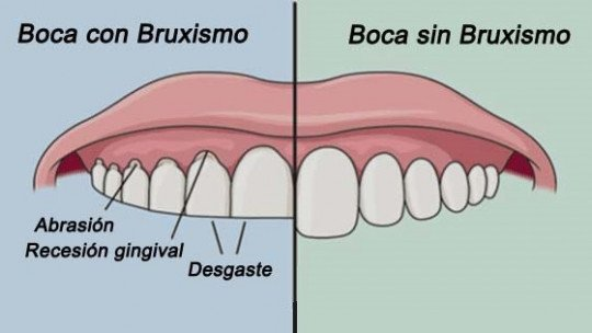 Bruxism (tooth grinding)-causes