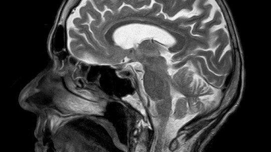 Cryptomnesia: when your brain plagiarizes itself