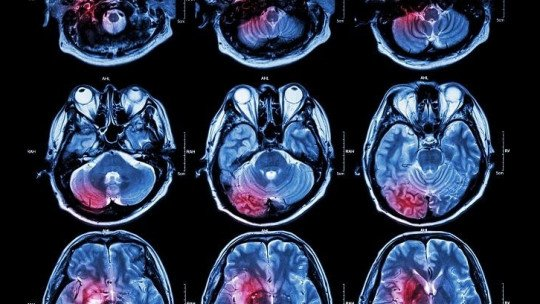 Differences between neuropsychology and neurology