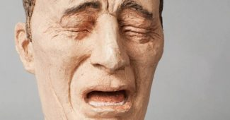 Dysesthesia: what is this symptom, causes, and types