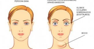 Graves-Basedow disease: symptoms