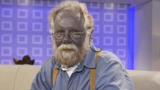 Methemoglobinemia (blue people)-symptoms