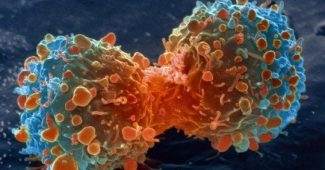 10 popular myths about cancer (and why they are false)