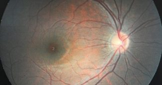 Optic nerve: parts, pathways and related diseases