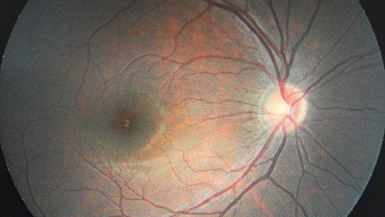 Optic nerve: parts