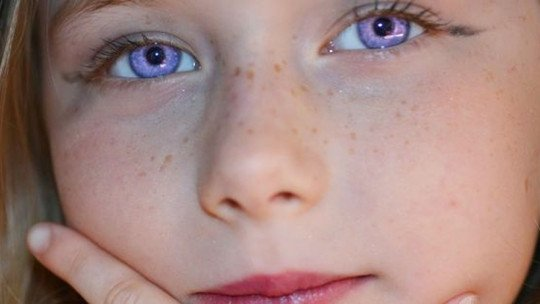 "Alexandria Syndrome: the ""rare condition"" of purple eyes"