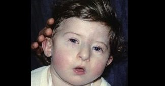 DiGeorge Syndrome-Symptoms, Causes, and Treatment