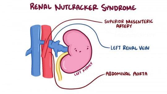 Nutcracker syndrome: symptoms