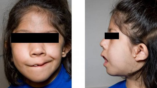 Goldenhar syndrome: symptoms