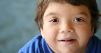 Noonan syndrome: causes, symptoms, and treatment