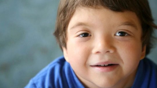 Noonan syndrome: causes