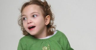 Rett syndrome: causes, symptoms, and treatment