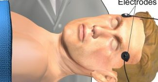 Electroconvulsive therapy (ECT): characteristics and uses in psychiatry
